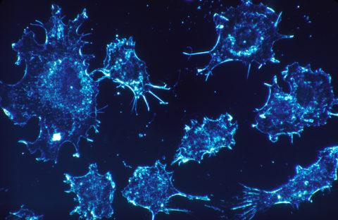 Dossier thématique : cancer et micronutrition